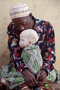 альбиносы танзании