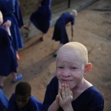 Люди-альбиносы в Танзании расходятся… на амулеты