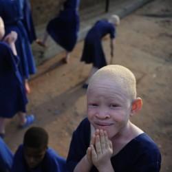 альбиносы из танзании